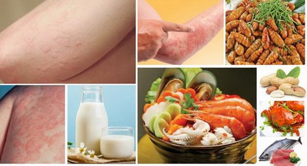 Dị ứng thức ăn: hải sản, nhộng, lạc, trứng, sữa... là nhóm dị ứng thường gặp nhất có thể gặp ở bất cứ ai.